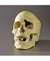 Plastic Skull with Gunshot Wound ARM-82-3569